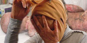 Жизнь без лица: спустя 3 года девушка решилась снять маску