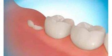 Новая технология позволяет вырастить собственные зубы всего за 9 недель!