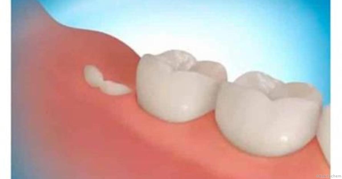 172Если снятся выпавшие протезы зубов