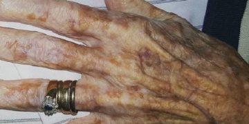 Пожилая дама попросила обрезать ногти на руках, и вот что услышала от медсестры