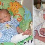 Девочка родилась с вывернутыми коленями. Но спустя 8 лет — она вернулась в больницу. То, что увидели медицинские работники — просто до слёз…